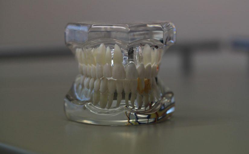 Złe podejście odżywiania się to większe niedobory w jamie ustnej a dodatkowo ich utratę